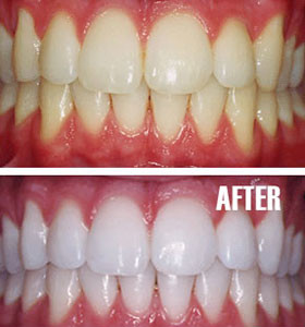 Before and After Shots - Teeth Whitening at Arizona Healthy Smiles in Tempe, Arizona
