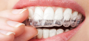 Clear Trays for Teeth Whitening at Arizona Healthy Smiles in Tempe, Arizona