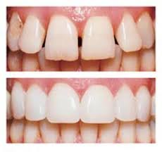 Veneers available at Arizona Healthy Smiles in Tempe, AZ