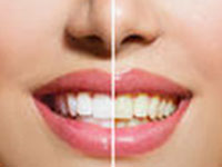 Cosmetic dentistry available at Arizona Healthy Smiles in Tempe, AZ